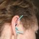 5 akupunkturnåle er isat på et øre